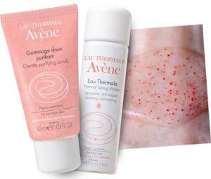 Exfoliante piel sensible